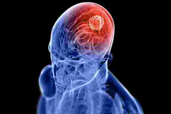 أعراض مرض السرطان في الرأس وكيفية تشخيصه ومدى خطورته زيادة
