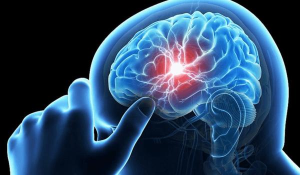 اعراض التهاب الاعصاب في الرأس وأسبابها ووظائفها وكيفية تشخيص المرض زيادة