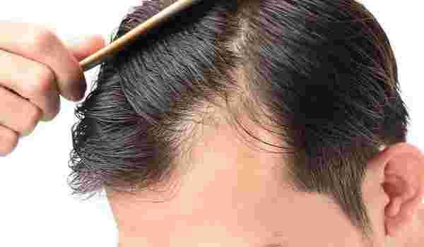 كيفية الوقاية من التهاب فروة الرأس