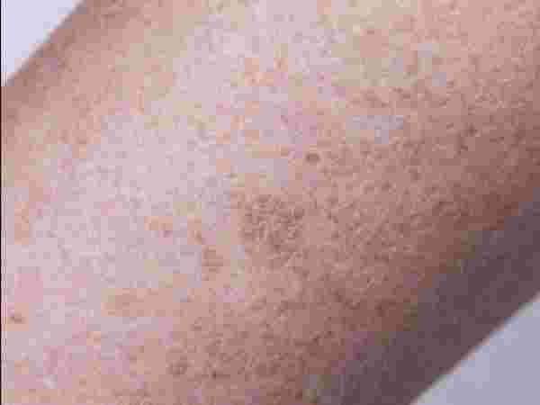 ظهور بقع على الجلد تشبه الحروق وأعراضها وأسبابها وطرق علاجها زيادة