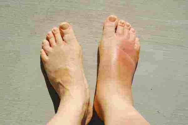 انتفاخ القدم اليمنى بدون الم التشخيص والعلاج في المنزل زيادة