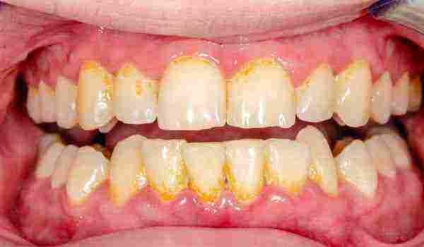 هكذا البلديات القرون الوسطى سبب تراكم الجير على الاسنان Dsvdedommel Com