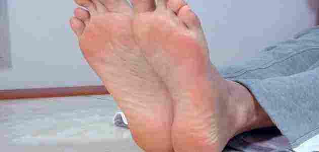 ألم أسفل القدم عند الاستيقاظ من النوم أسبابه وكيف نعالجه زيادة