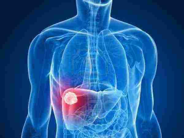 قائمة أعراض المرحلة الأولى غيبوبة الكبد