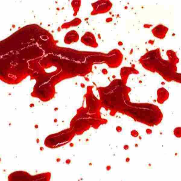 نزول قطع دم زي الكبده للحامل