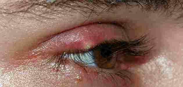 أسباب ظهور حبوب داخل جفن العين زيادة
