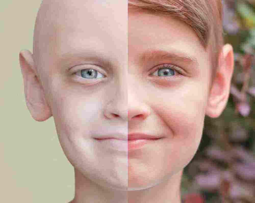 أعراض سرطان الدم عند الأطفال والعلامات المبرة له وكيفية التعامل معه زيادة