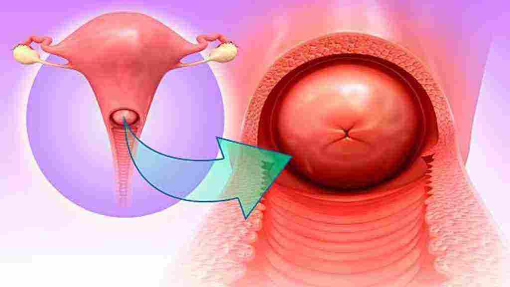 اعراض سرطان المهبل