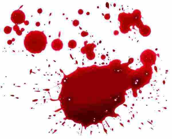 تفسير حلم الدم في المنام في اليد وفي القدم وفي الرأس وللبنت والمتزوجة زيادة