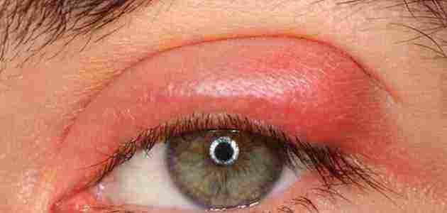 علاج انتفاخ جفن العين العلوي أو السفلي زيادة