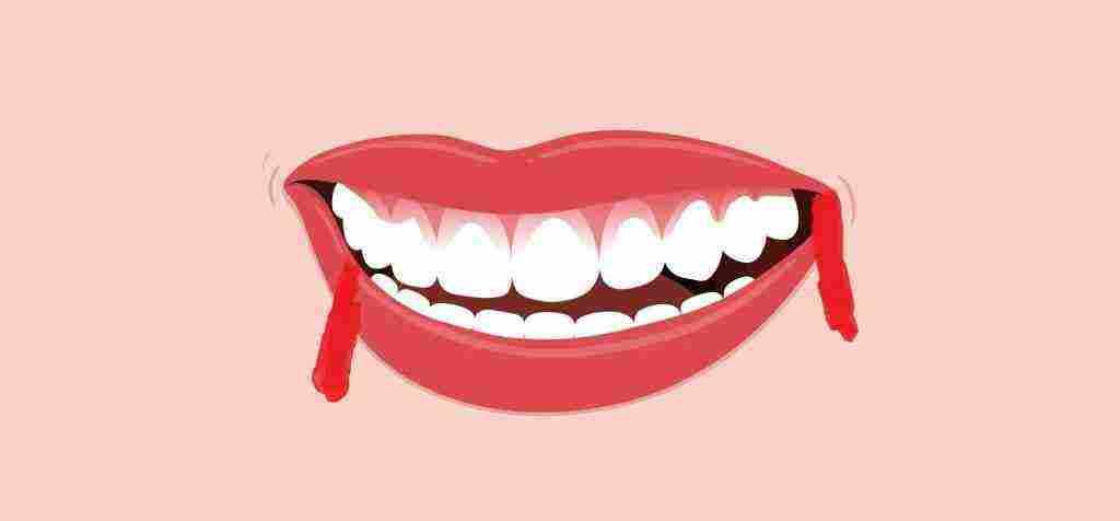 أسباب خروج الدم من الفم مع البلغم ومتى يمكن زيارة الطبيب – زيادة