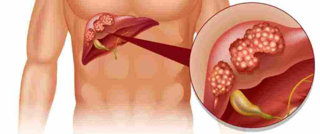 اين يقع الكبد في جسم الانسان زيادة