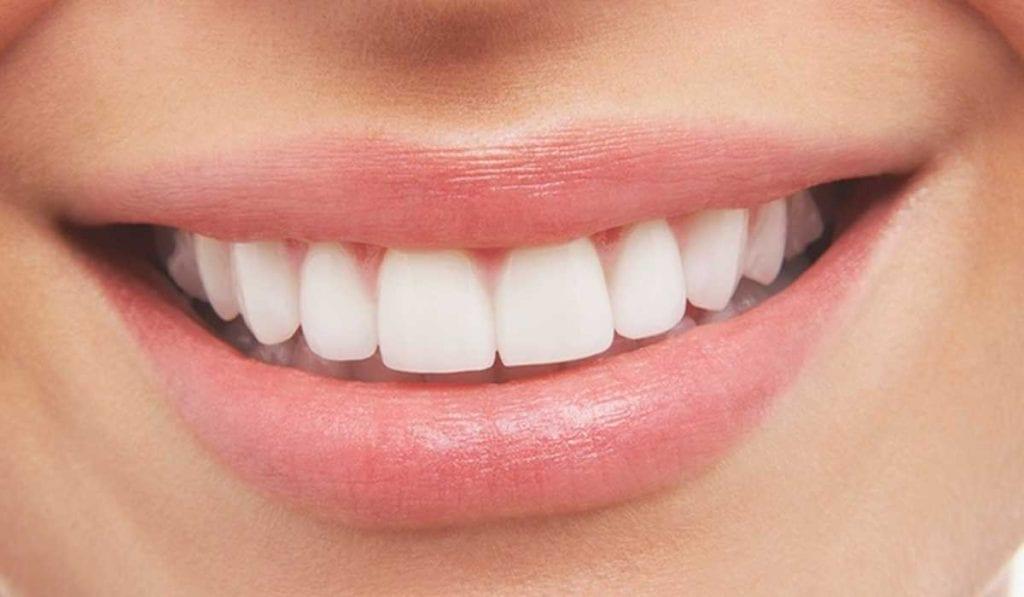 فوائد الكركم للاسنان وبعض خلصات الكركم لتبيضها – زيادة