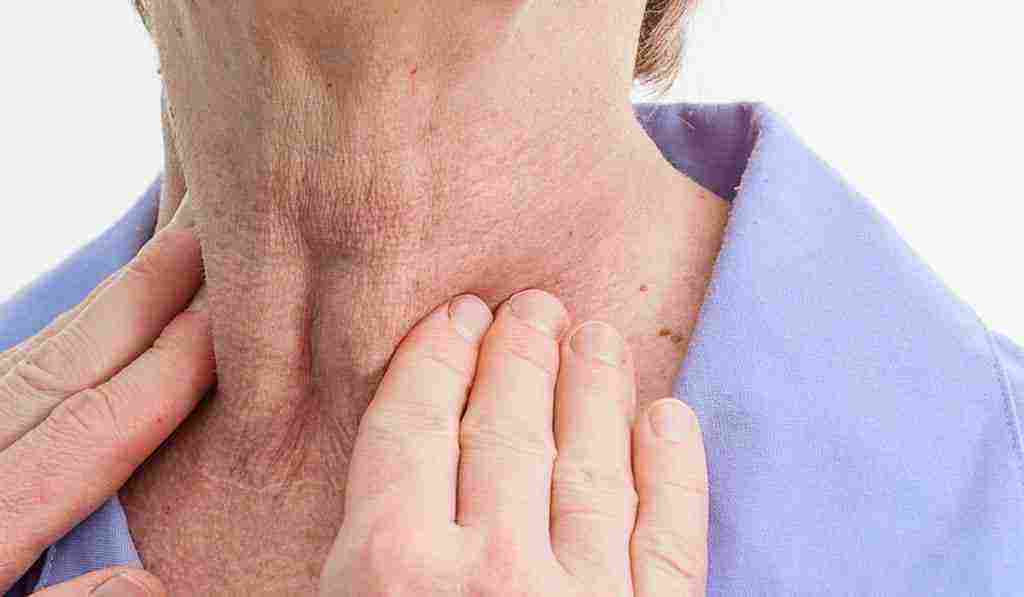 علاج تضخم الغدة الدرقية واسبابه واعراضه وطرق علاجه الطبيعية زيادة