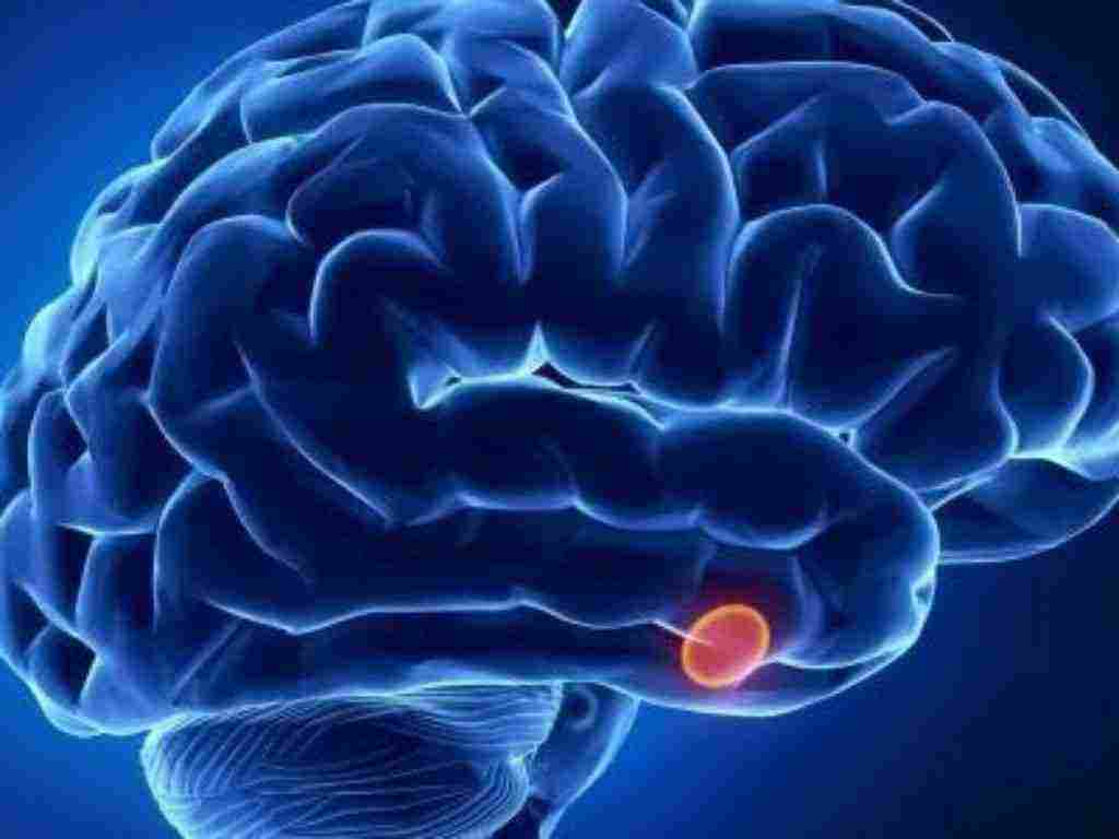 اعراض ورم الغدة النخامية ومخاطر أورام الغدة النخامية وكيفية تشخيصه زيادة