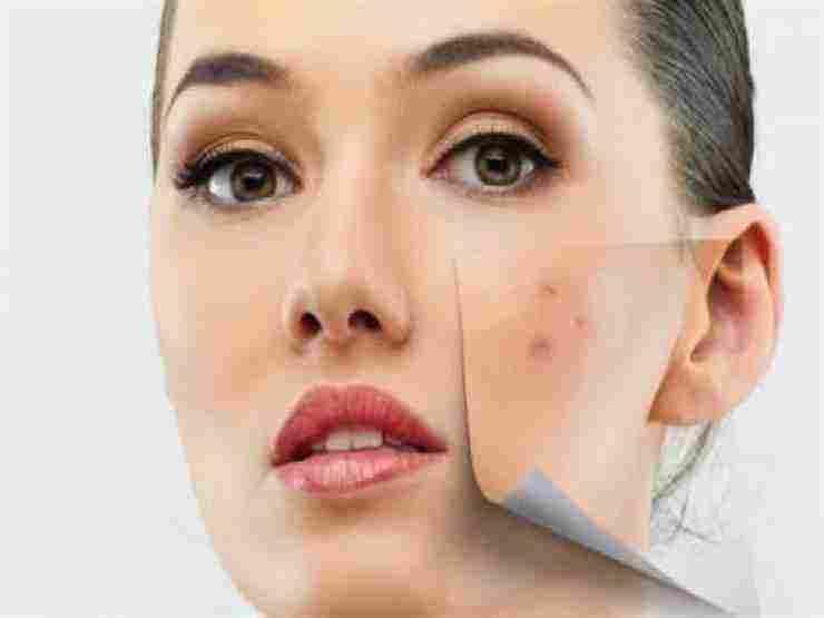 علاج حساسية الوجه بالمواد الطبيعية والعناية بها زيادة