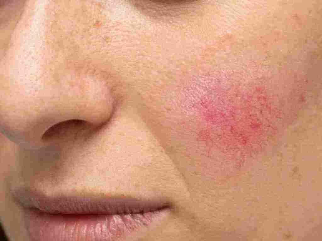 عملية مراقبة حول التعرية اسباب ظهور حبوب حمراء صغيرة في الوجه Sjvbca Org