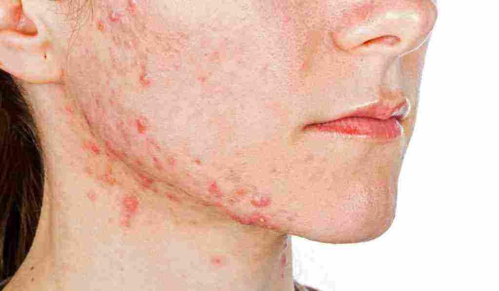 علاج حبوب الوجه الحمراء وما أسبابها زيادة