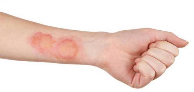 علاج الحروق القديمة من الدرجة الثالثة ب 3 طرق زيادة