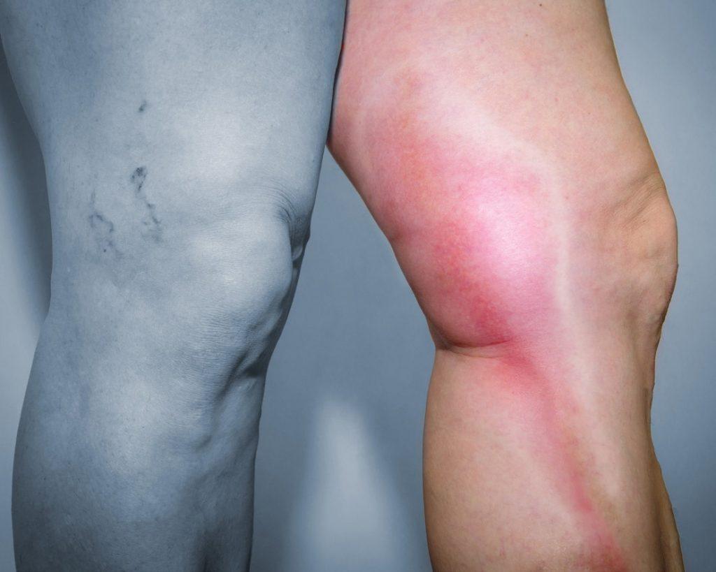 علاج تخثر الدم في القدم والأعراض التي تؤكد تخثر الدم في القدم زيادة
