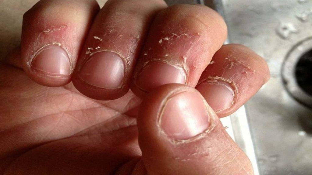 تقشر الجلد نقص فيتامين وكيفية علاجه بالطرق الطبيعية زيادة