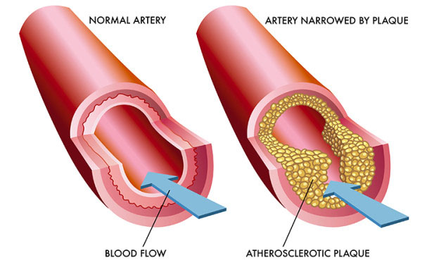 علاج الكوليسترول بالأعشاب مجرب وعوامل خطورة زيادة مستوى الكوليسترول في الدم زيادة