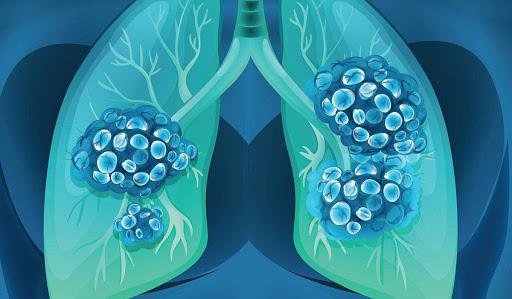 كم يعيش مريض سرطان الرئة المرحلة الرابعة وماهي المراحل التي يمر بها زيادة