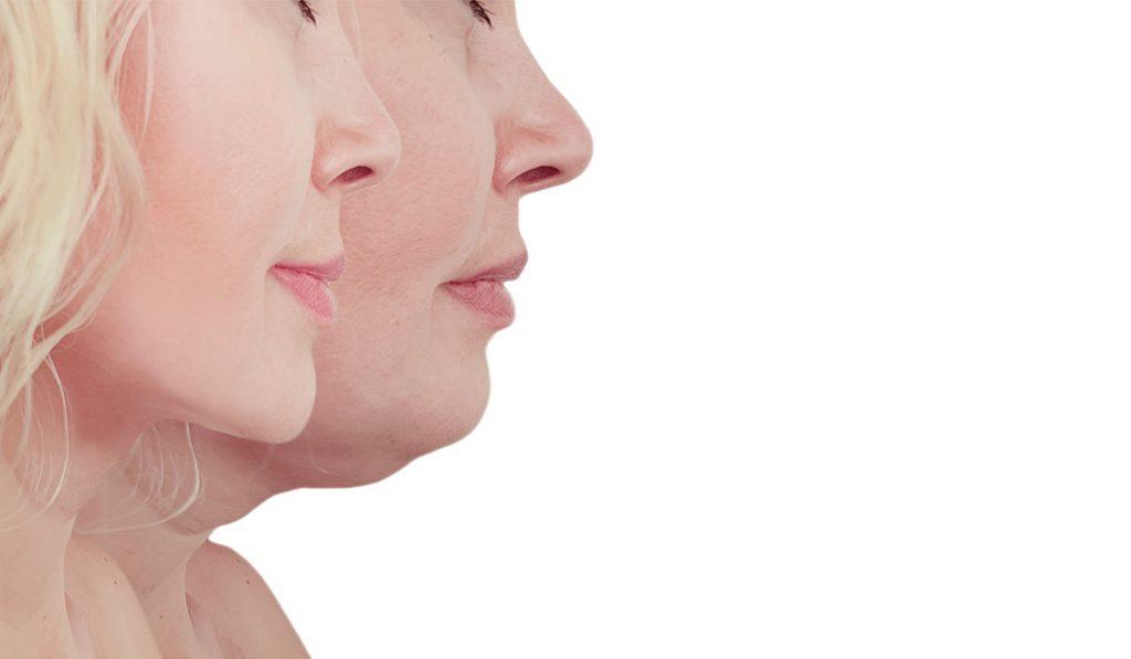 أضرار جهاز شفط الدهون من الوجه وبعض التحذيرات عند استعماله زيادة