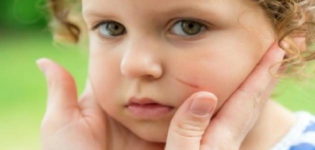علاج الجروح السطحية في الوجه وطرق التخلص من آثارها زيادة