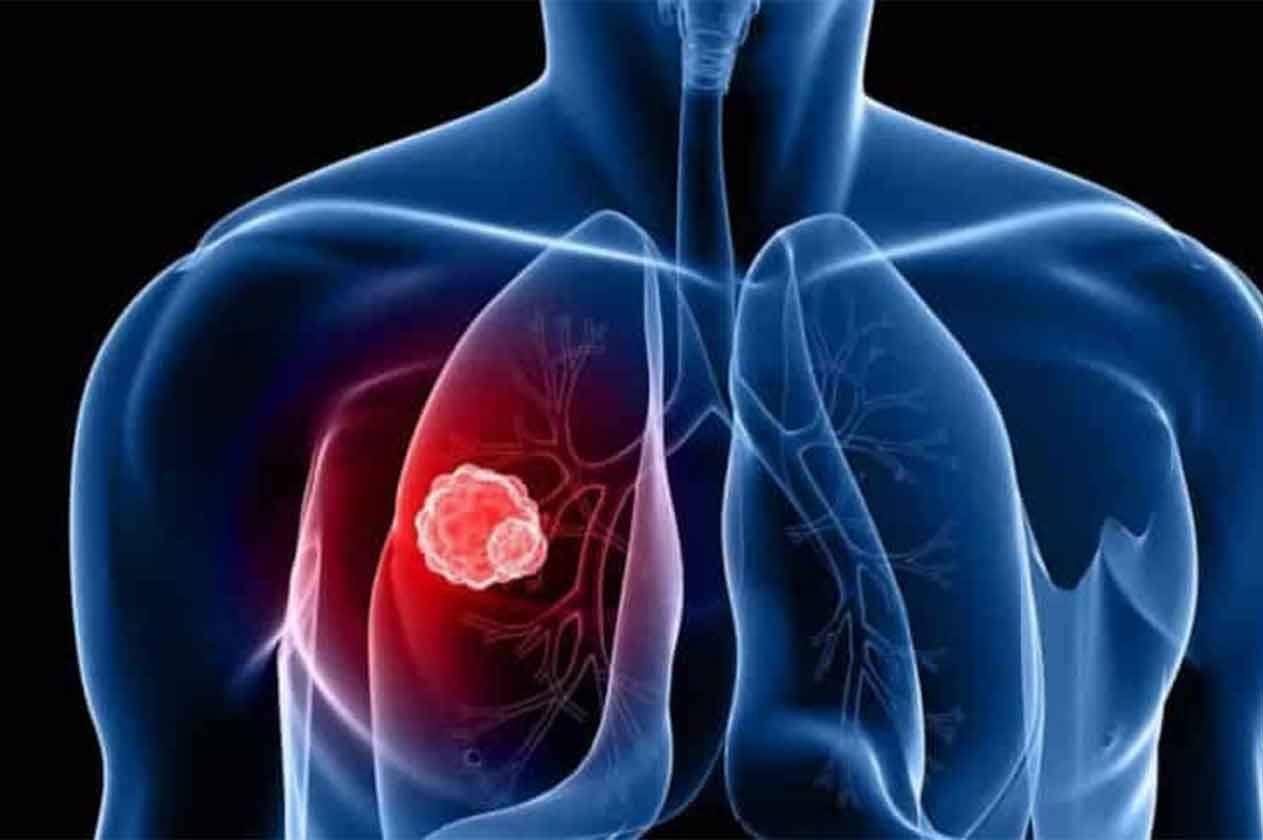 أعراض سرطان الغدد اللمفاوية في الرقبة وعلاجها
