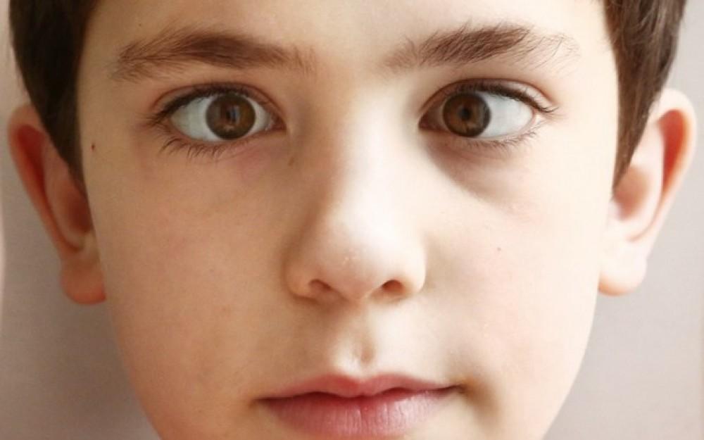 الفرق بين الحول والحور وطرق علاج حول العين زيادة