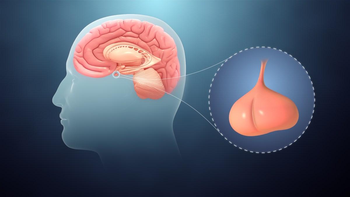 هل ورم الغدة النخامية خطير وما هي أعراضه وطرق علاجه زيادة