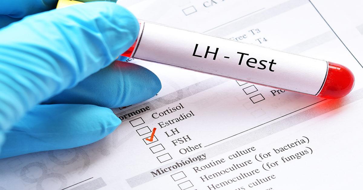 الهرمون المنبه للجريب (FSH) والهرمون الملوتن (LH) والإستراديول (E2)