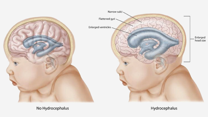 هل يعيش طفل الاستسقاء الدماغي